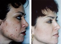 acne treatments with microdermabrasion