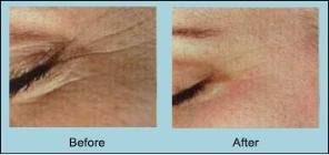 anti-ageing microdermabrasion at Suzanne's Beauty in Stoke