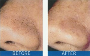 blackhead removal with microdermabrasion