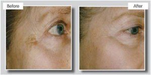 anti ageing laser treatment at Suzanne's Hair & Beauty in Stoke