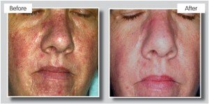 thread vein removal, suzanne's beauty clinic in stoke