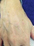 age spot removal, coventry beauty salon