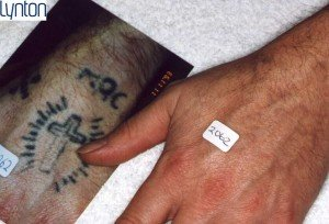 tattoo removal, Coventry beauty clinic