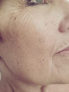 skin rejuvenation after 1st treatment
