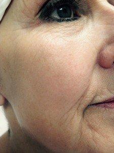 skin rejuvenation after 3 treatments