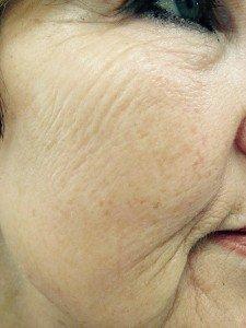 skin rejuvenation at coventry hair & beauty salon