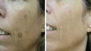 Skin-photorejuvenation-on-skin-spots-at suzanne's beauty salon
