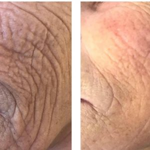 plasma pen at suzannes beauty salon coventry