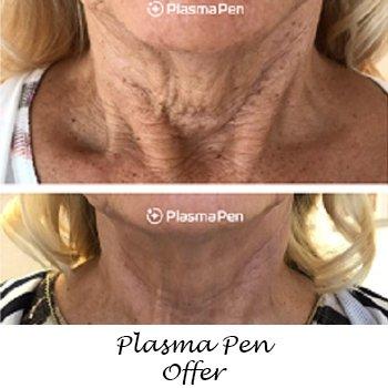Plasma Pen Offer