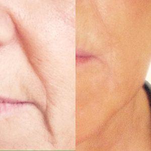 Dermalogica Overnight Retinol Repair, Suzanne's Hair & Beauty Salon, Coventry