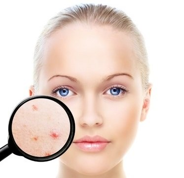 acne treatments, coventry beauty salon