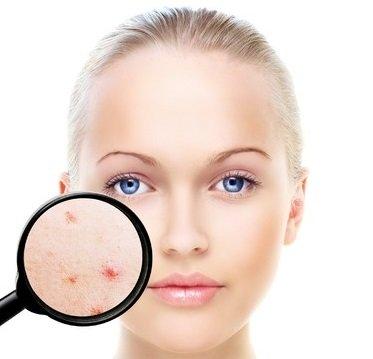 acne treatments, coventry beauty salon